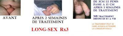 Agrandir Penis 32