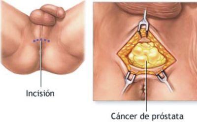 De que no es posible hacer con implantami en el pecho