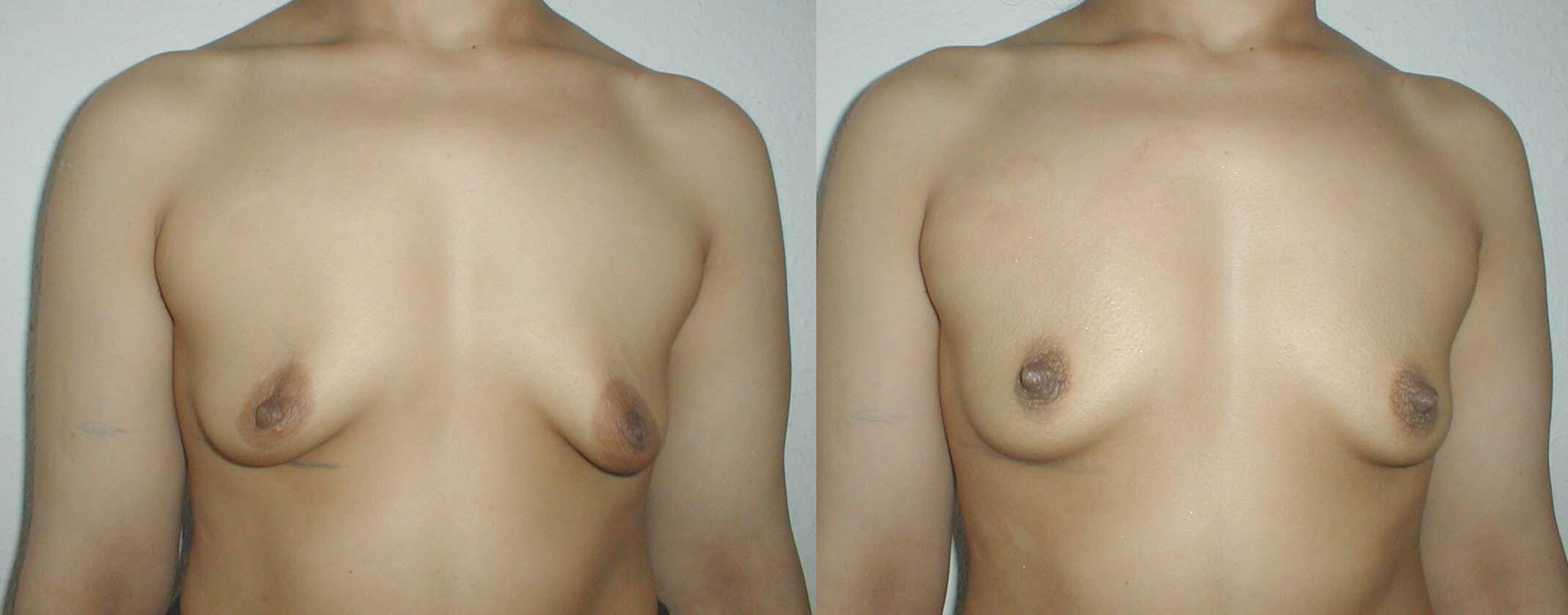 Силикованная грудь фото 12 фотография
