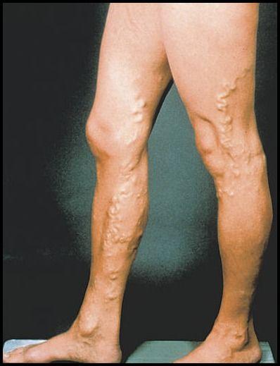 Wie Venen auf dem Bein zu heilen