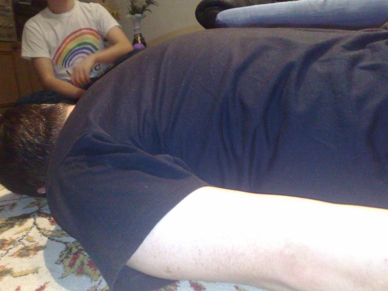 Inainte de tratament---coloana dreapta(spondilita reumatismala)