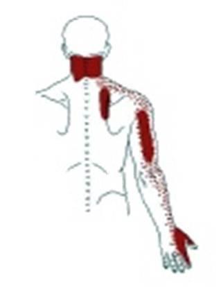 De la inestabilidad sheynyh de los departamentos de las vértebras