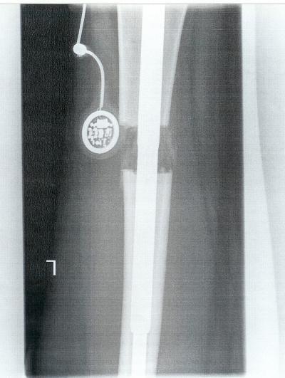 Ob gribok der Beine übergehen kann