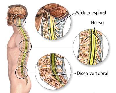 Sheynyy la osteocondrosis da en los pies
