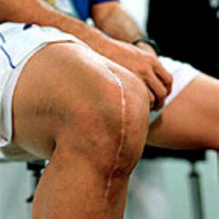 Ronaldo's Knee