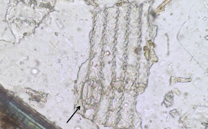 Meerschweinchenbohnen unterm Mikroskop
