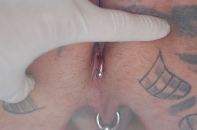Piercing anal
