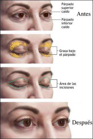 Cirujano Plastico Dr. Rafael Añez Moreno