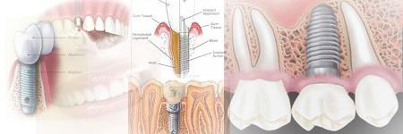 Dental Implants Directory,Dental Implants World