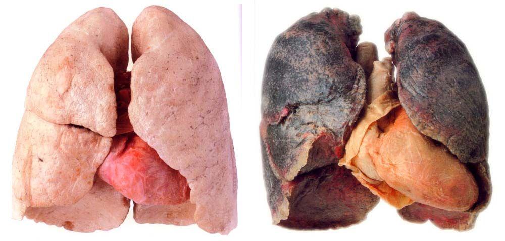 A verdade se for possível deixar de fumar vai se recuperar