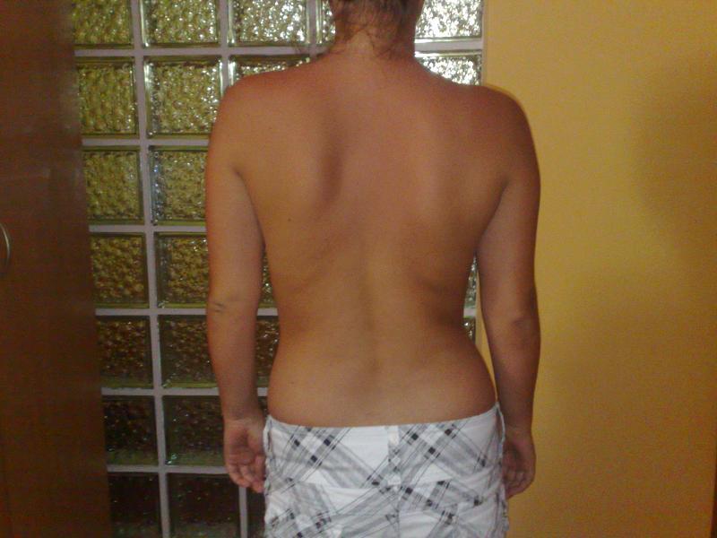 dureri de spate partea dreapta a coloanei vertebrale lombare a coloanei vertebrale