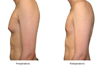 El pecho después de mammoplastiki de 6 meses