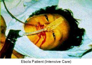 Quelle: CDC