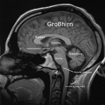 KBG Gelsenkirchen Lernseite - I.8 - Neuroanatomie