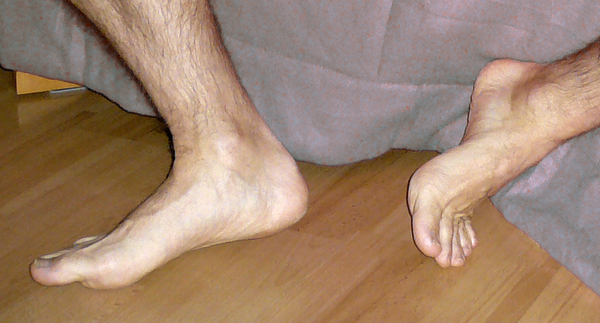 Les jolis pieds de virginie - 3 2