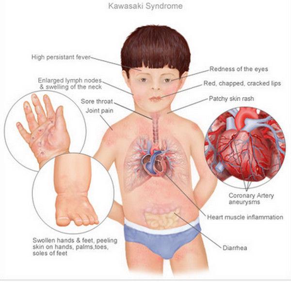 Kawasaki Sendromu, Kawasaki Syndrome