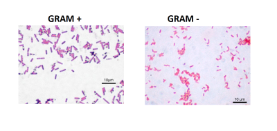 a lab evaluation of the characteristics of bacteria under various staining techniques Staining technique # 1 gram stain method: before staining, the position of the smear on the slide should be wash, blot, dry and mount under oil immersion objective acid fast bacilli are stained pink or red some bacteria like tubercle bacilli cannot be easily stained by gram stain because of the.